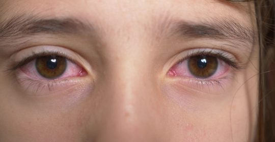 Ocular Allergies That Can Be Treated By Homeopathy