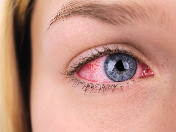 Red & Bloodshot Eyes: Common Causes and Remedies