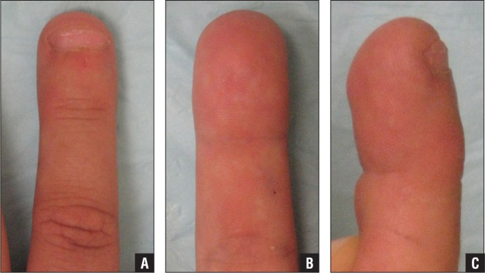 Clinical photographs of patient at final follow-up showing dorsal (A), volar (B), and lateral (C) views of the right ringer finger.