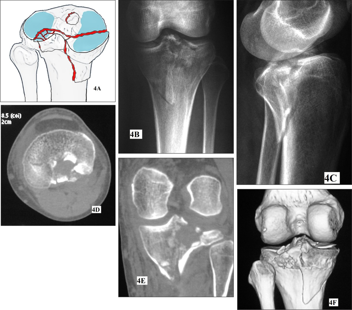 Posteromedial condyle split fracture with posterior articular impaction of the lateral plateau. Schematic drawing showing the characteristics of the fracture pattern (A). Anteroposterior (B) and lateral (C) radiographs of a posteromedial plateau split fracture associated with articular depression of the posterolateral plateau. The spike of the split posteromedial fragment locates on the posterior aspect of the medial condyle. Axial computed tomography (CT) image showing a posteromedial condyle split fragment with posterolateral quadrant impaction (posterior bicondylar fractures) (D). The posterior cortex of the lateral plateau is broken. Posterior coronal CT image showing posteromedial plateau fragment and comminuted impaction of the posterolateral plateau (E). Three-dimensional reconstruction showing the fracture pattern and fragment anatomy (F).