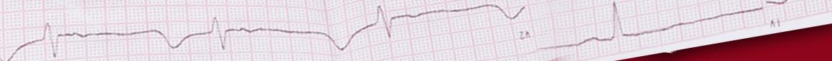 Heart rhythm society