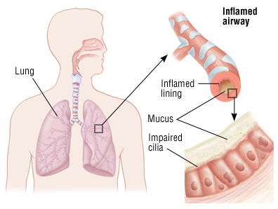 Image result for acute bronchitis