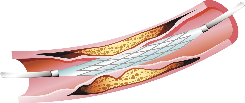 Cardiovascular Disease Stents - Cardiovascular Disease
