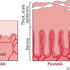Skin Cross Section Diagram Golf Cart Battery Wiring Ez Go Psoriasis: More Than Deep - Harvard Health