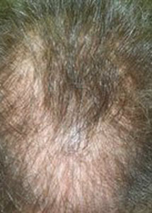hair dermititus hair loss hair loss treatment