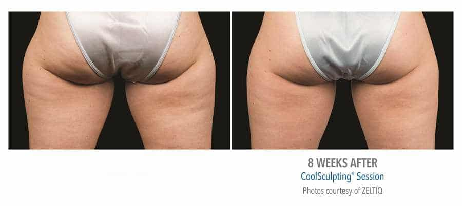 Sona Med Spa Coolsculpting Before And After