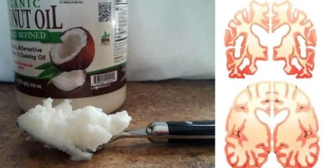 Man Eats 2 Tbs of Coconut Oil Twice a Day For 60 Days And This Happens To His Brain!
