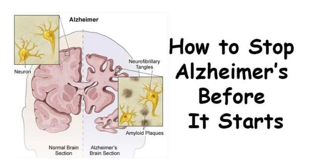 10-Things-to-Do-Immediately-to-Prevent-Alzheimer's-Disease