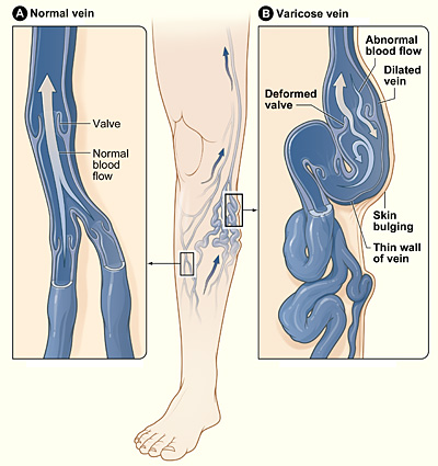 By National Heart Lung and Blood Institute. (Varicous veins.) [Public domain], via Wikimedia Commons