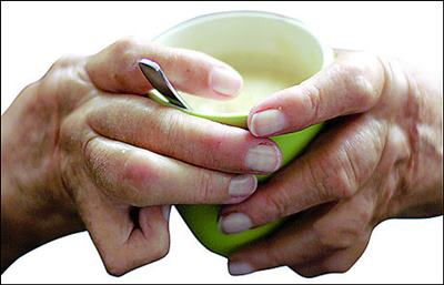 Natural Treatments for Rheumatoid Arthritis