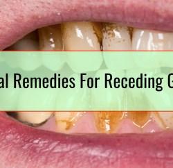 Herbal Remedies For Receding Gums