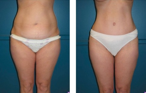 Abdominoplasty Side Effects