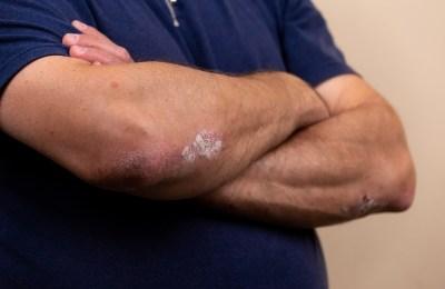 Natural Remedies That Reduce Symptoms Of Eczema