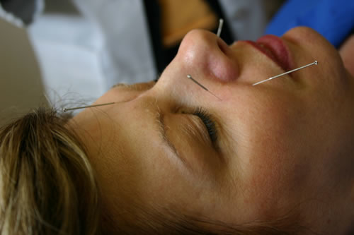 anxiety Acupuncture