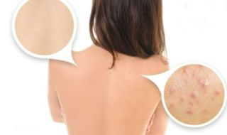 How to Get Rid of Back Acne Scars