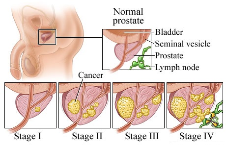 Image result for How stages of prostate cancer are determined?