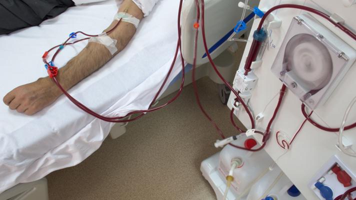 A cost-saving hemodialysis treatment