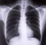 respiratory technician salary data