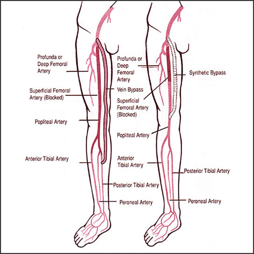 leg venous diagram mercedes wiring color codes peripheral artery disease screening helathcheck101