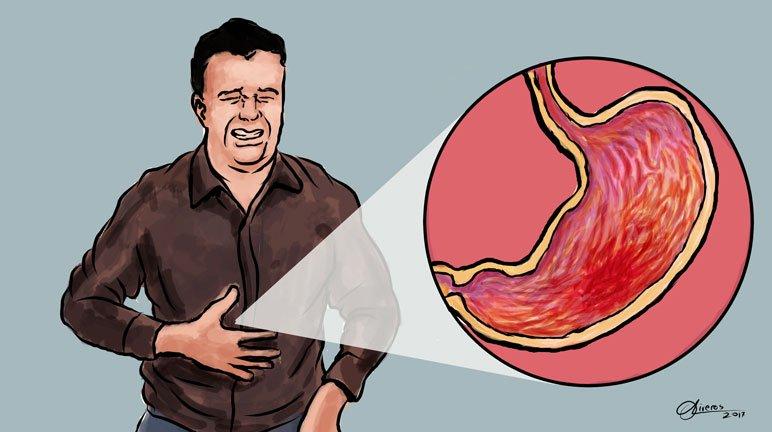 was ist gastritis a bei chronischer