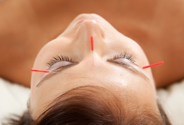 Acupuncture treats depression here with Yintang.