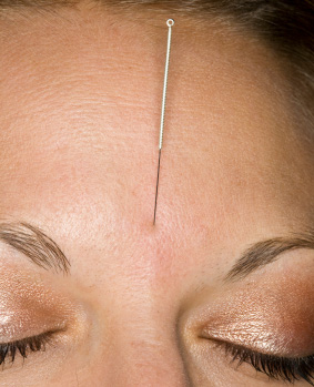 Panic Attacks and Acupuncture