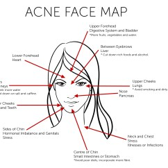What Causes Acne Diagram 2011 Honda Accord Fuse Box Does Your Reveal About Health