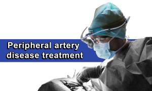 Peripheral artery disease treatment