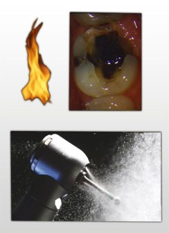 Water through the procedure to keep the area cool during tooth drilling