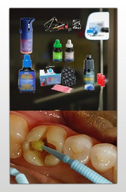 Binding agent and using them to clean teeth