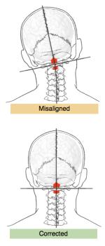 Upper Cervical Posture