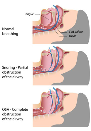 anatomical heart diagram posterior vauxhall zafira fuse box sleep apnea: symptoms, treatments, tests, causes, and cures | healthguidance