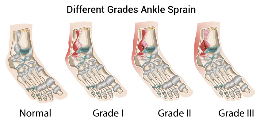 Ankle Sprain: Recovery Time Symptoms Causes & Treatment ...