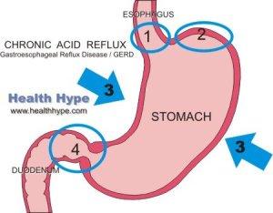 Chronic Reflux   Persistent, Constant, Recurrent Acid