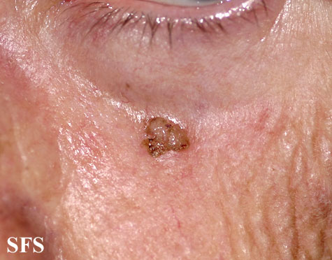 Itchy Eyelids – Pictures Causes and Treatment ...