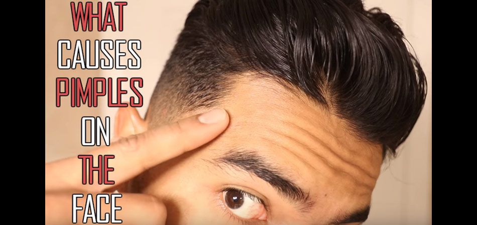 What causes pimples on the face