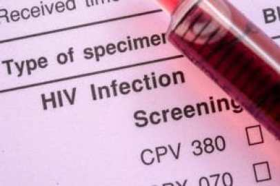 46805279 - sample blood in syringe on hiv infection screening test form.