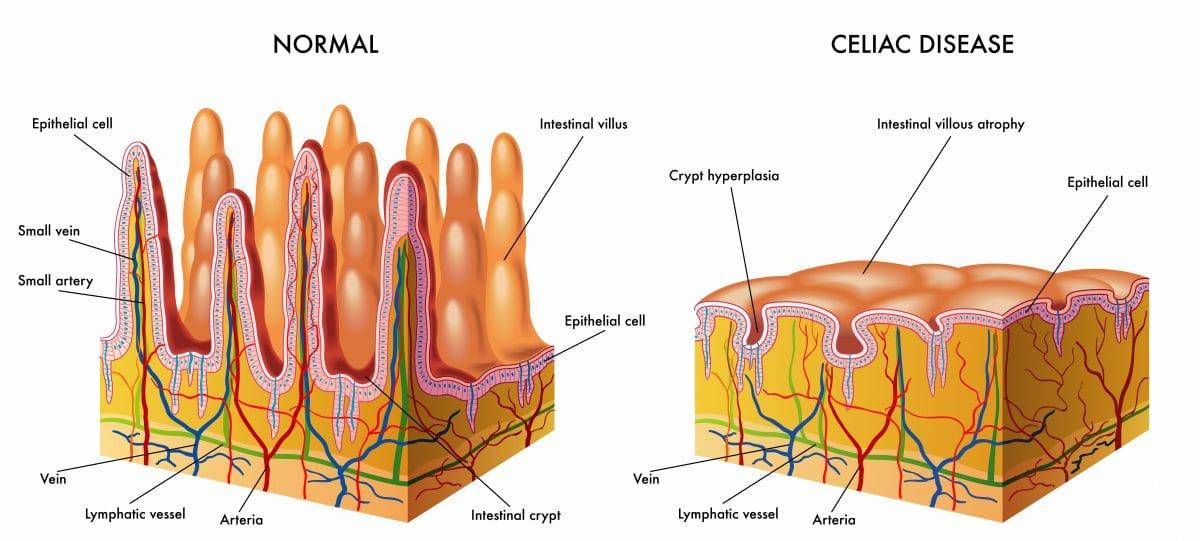 Disease profile: Celiac disease