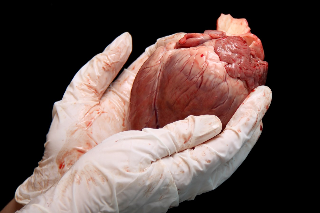 heart donors concept. abstract organ transplantation. A human heart in woman's hand. Saving lives hopelessly sick. Complex surgical operations. International crime. Assassins in white coats. isolated on black background. Image credit: Aleksandra Kuznecova / 123rf. heart damage concept.