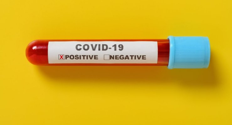 a covid-19 blood test tube with result of positive on yellow background the X has clipping path and can be removed. COVID-19 testing concept. Antibody tests concept. Image credit: 罗 宏志 / 123rf. COVID-19 cases now number at one million: concept.