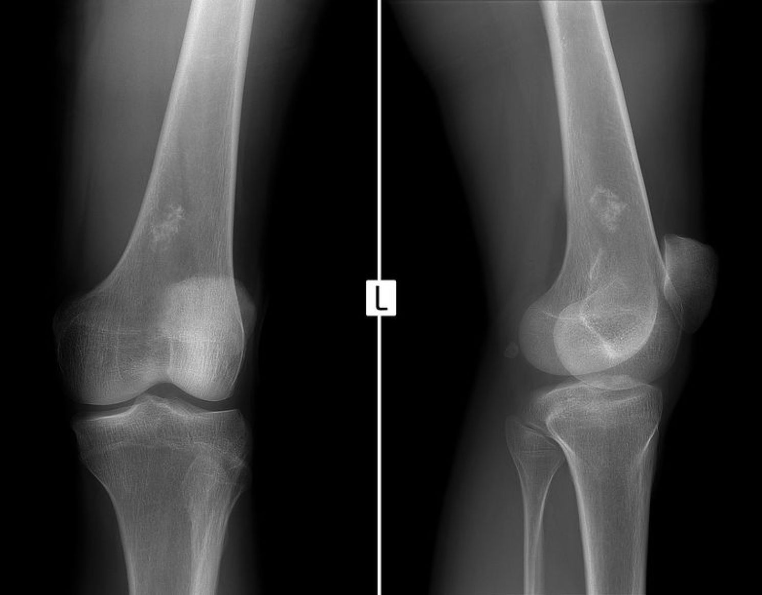 X-ray of the left knee joint. Ewing sarcoma, lymphoma, myeloma thigh bone.