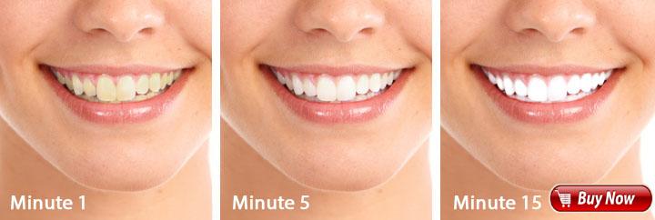 Teeth Whitening Led Light Side Effects