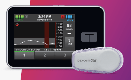 Diabetes Product Review New Tandem Basal Iq System