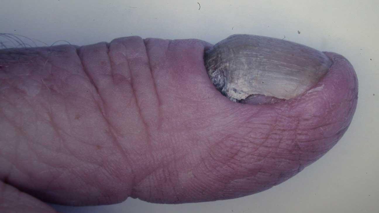 yellow nail syndrome svenska