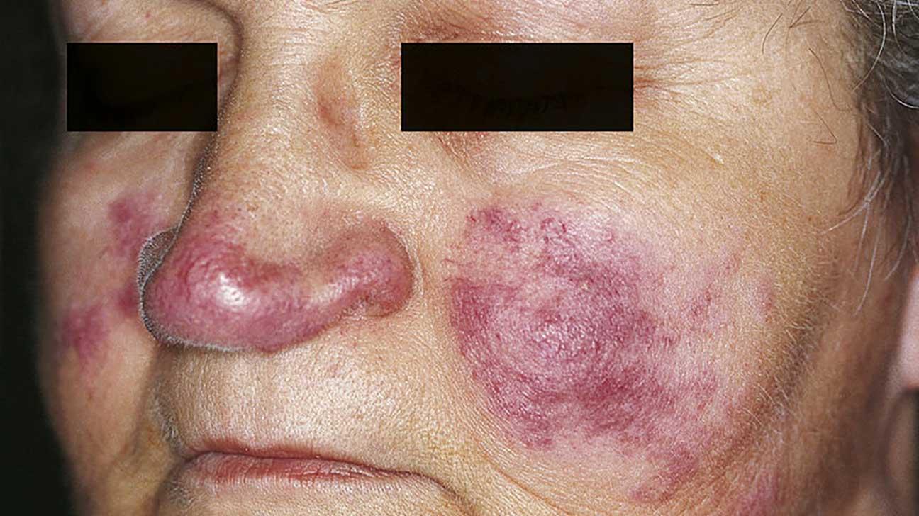 Recurring facial rashes