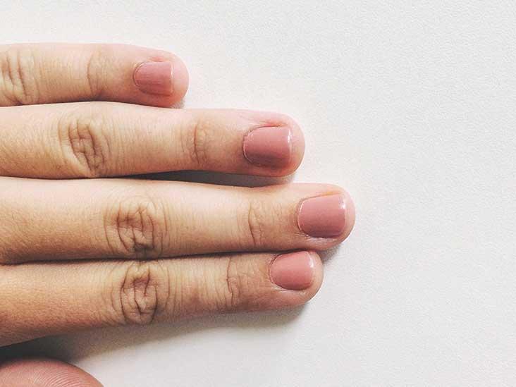 Is It Nail Psoriasis or Nail Fungus?