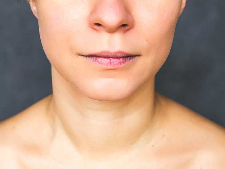 Mild facial numbness