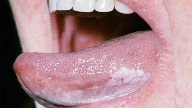 Leukoplakia Causes Symptoms And Diagnosis