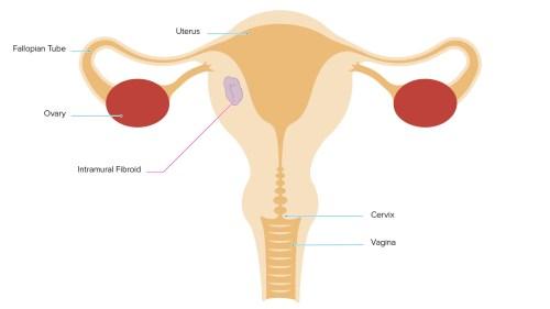 small resolution of uteru wall diagram