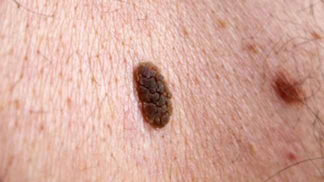 seborrheic keratosis risks diagnosis treatment